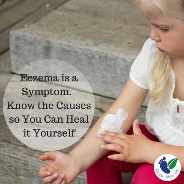 5 Natural Remedies for Healing Eczema