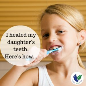 Preventing and Healing Cavities Naturally